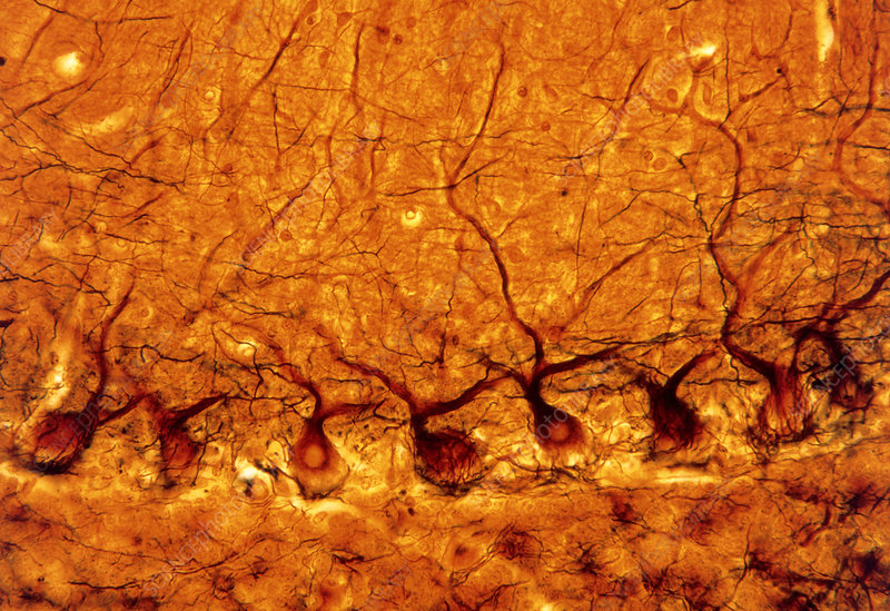 LM of purkinje nerves cells in the cerebe