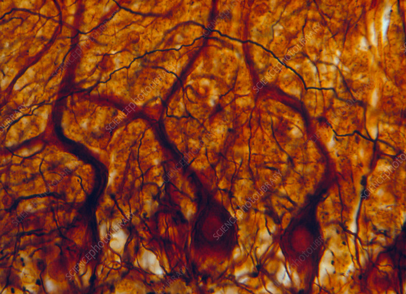 LM of purkinje nerve cells in the cerebellum