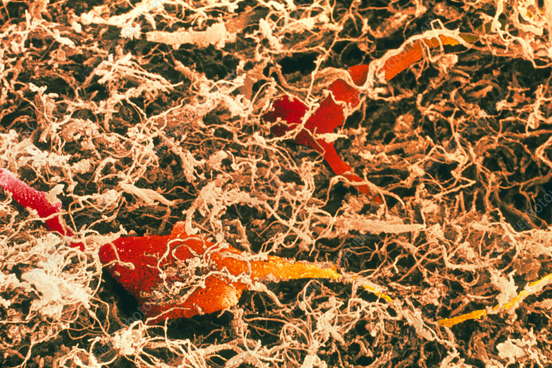 Coloured SEM of spinal cord nerve cells