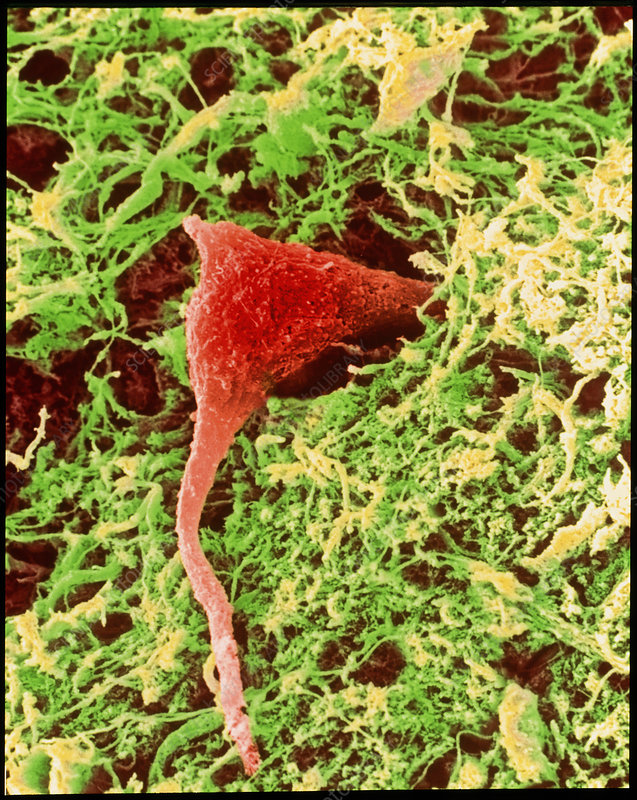 Coloured SEM of a nerve cell in brain tissue