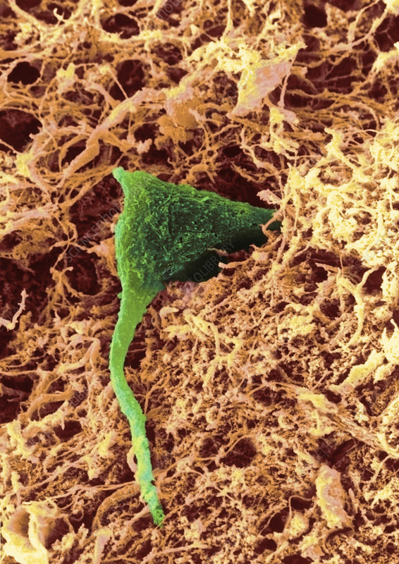 SEM of a nerve cell in brain tissue