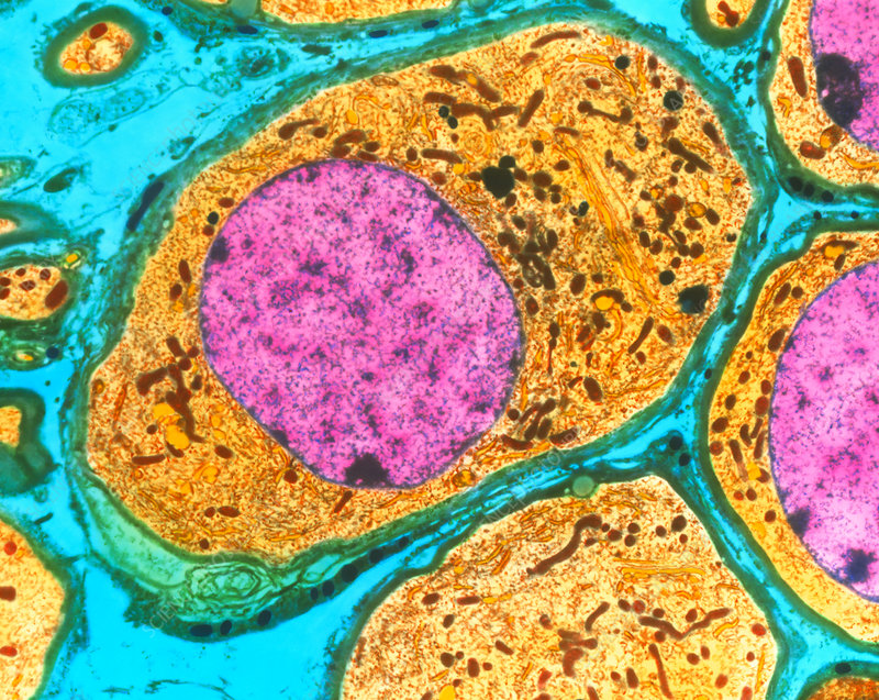 Coloured TEM of nerve cells in a human ganglion