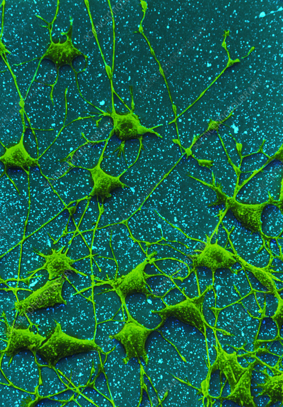 SEM of nerve cells and their dendrites