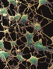 SEM of nerve cells