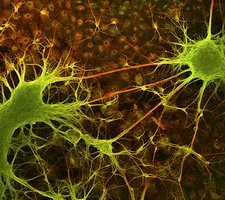 Nerve cell growth