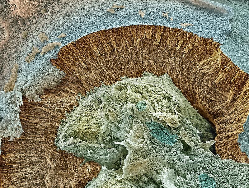 Foetal brain tissue , SEM