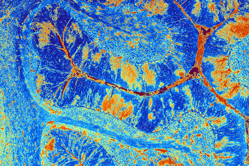 Cerebellum tissue, light micrograph - Stock Image - P360 ...