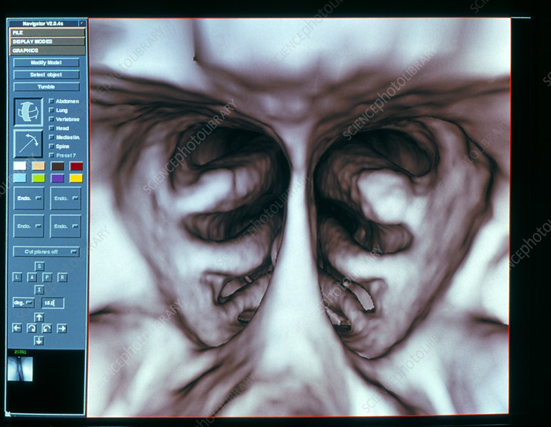 3-D CT scan of the conchae in the nasal sinuses