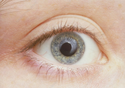 Human eye showing dilated pupil