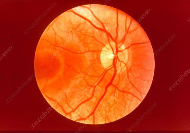 Picture of human retina through lens