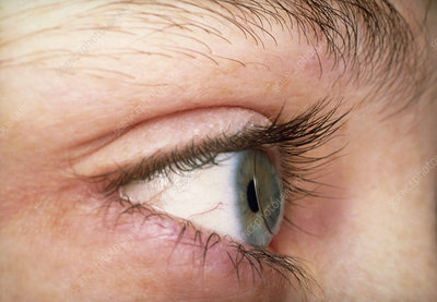 Contact lens in the eye of a young woman