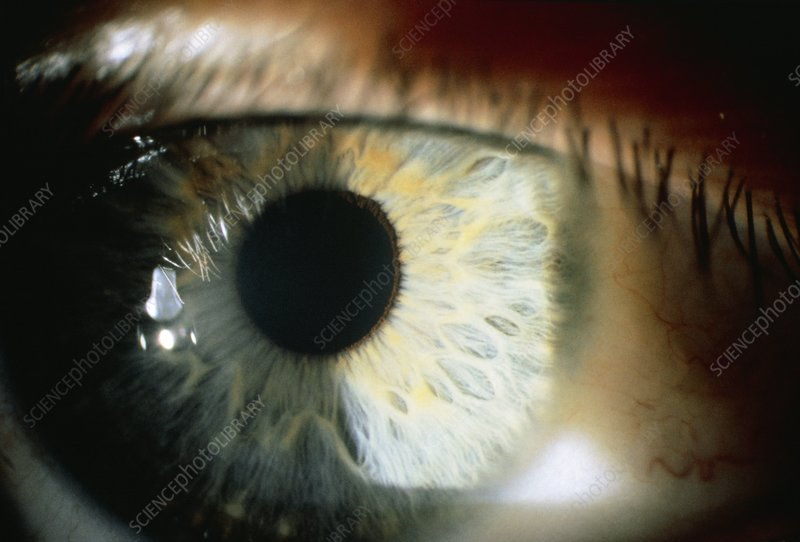 Slit lamp photograph of the human eye