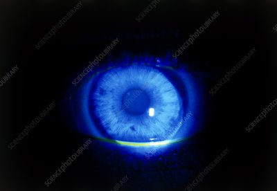 Normal eye highlighted with fluorescin under UV