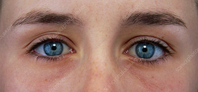 Close-up of a woman's blue eyes