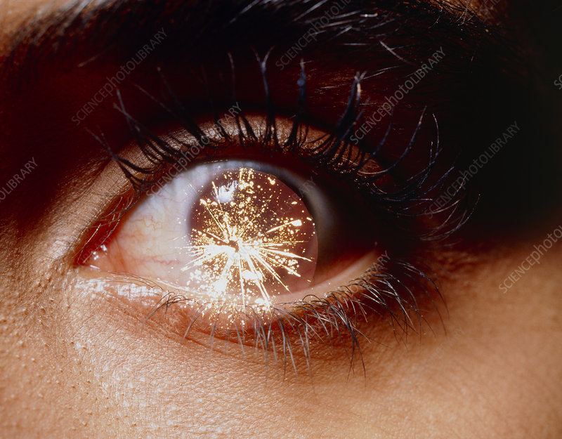 Abstract image of eye with fireworks in eyeball