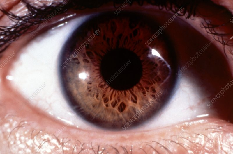 Close-up of healthy brown human eye