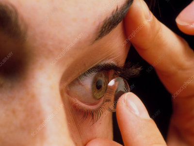 Woman fitting a contact lens onto her eye
