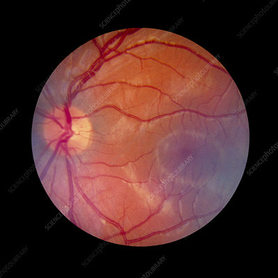 Fundus camera image of a normal retina, Caucasian
