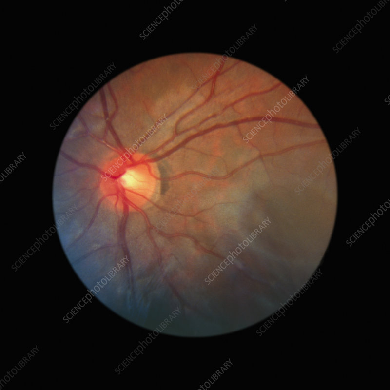 Fundus camera image of a normal retina, Asian.