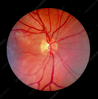 Normal retina of eye