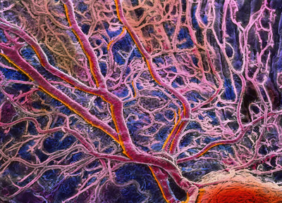 Blood vessels in eye