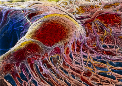 False-colour SEM of blood vessels in eye choroid