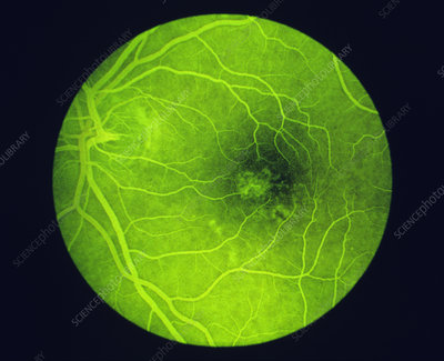 Fluorescein angiogram of a healthy eye retina