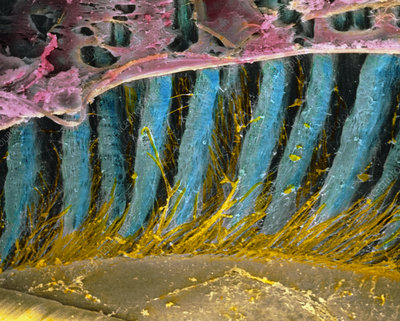 Coloured SEM of ciliary processes of the eye