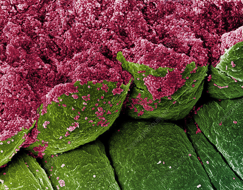 SEM of iris epithelial cells of the eye