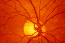 Healthy retina of eye