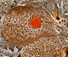 Choroid layer of the eye, SEM