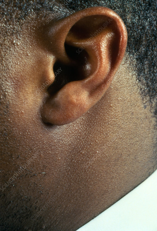 Genetic trait, attached earlobe