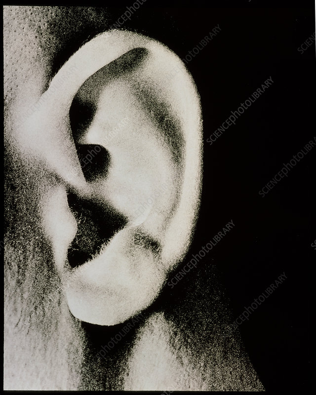 External view of a man's ear