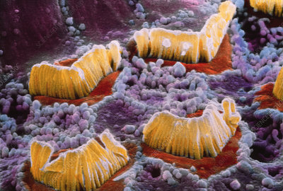 SEM of hair cells in organ of Corti