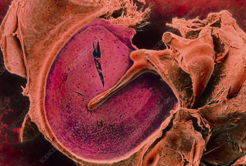Coloured SEM of the eardrum and associated bones