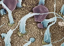 Inner ear sensory cells, SEM