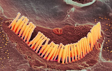 Inner ear hair cells, SEM