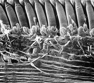 SEM of first row of outer hair cells of human ear