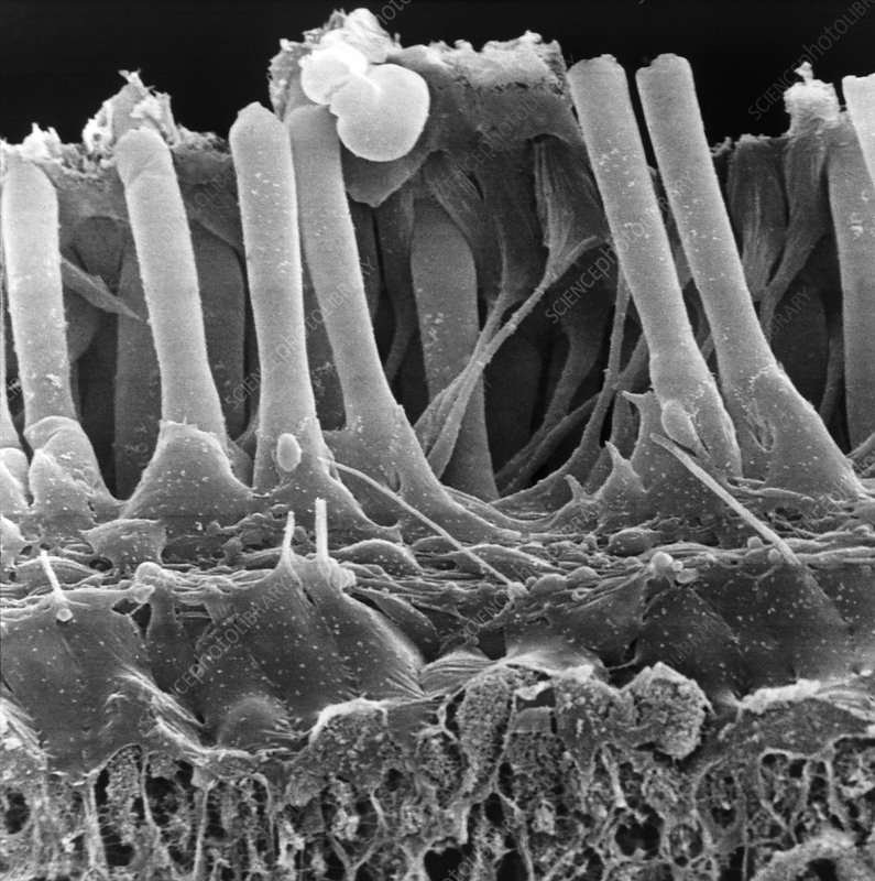 Normal inner ear hair cells, SEM