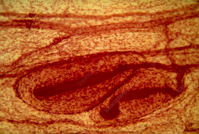 LM of pacinian corpuscles in human skin