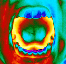 Thermogram of a woman's mouth and teeth