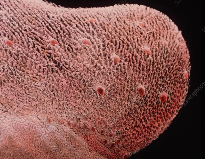 P False Colour Sem Of Dorsal Surface Of Tongue Spl on Dorsal Tongue Anatomy