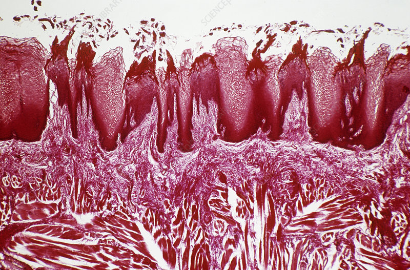 Tongue papillae, light micrograph