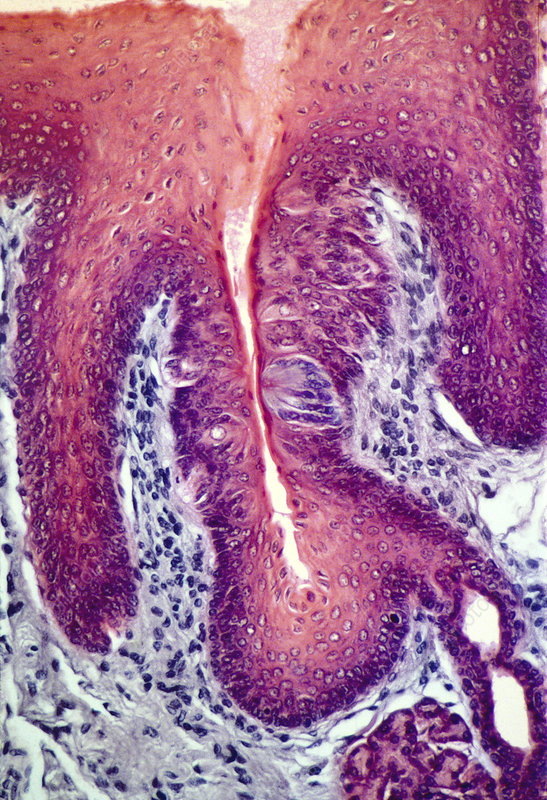 Taste bud, light micrograph - Stock Image P478/0071 - Science Photo ...