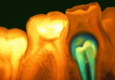 Coloured X-ray of tooth erupting under milk tooth
