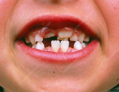 Girl's mouth showing replacement of milk teeth