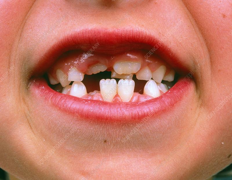 Как вырастить выпавший зуб