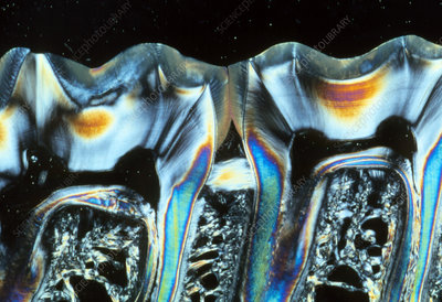 Sectioned teeth