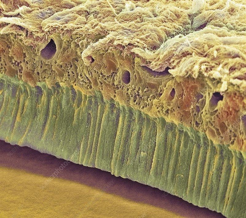 Tooth enamel formation, SEM