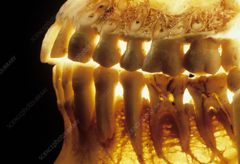 Teeth in the jaws